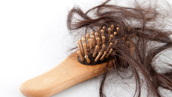 脱发很严重还能治好吗