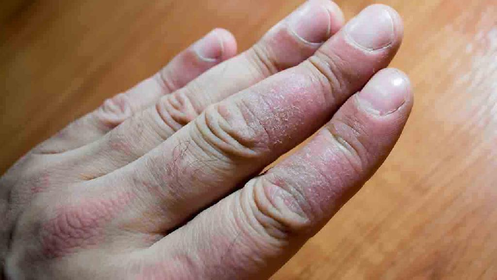 牛皮癣的初期症状有哪些?
