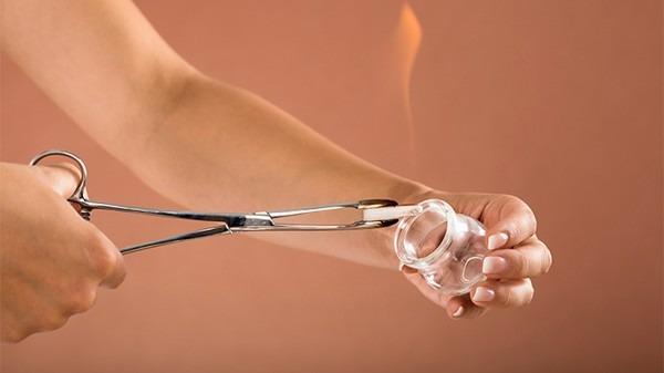 拔火罐能治颈椎病吗?拔火罐的4种方法