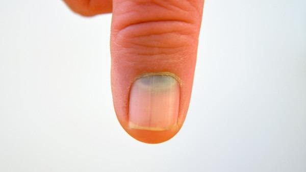 灰指甲疼痛怎么办?疼痛2点处理