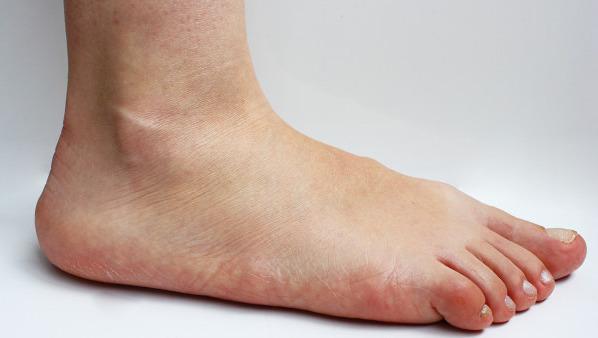 脚趾痛是痛风吗?有可能是