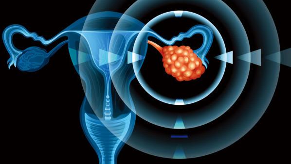 判断卵巢囊肿依据什么?鉴别卵巢癌的4个方法