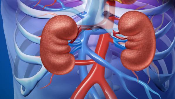 什么是肾结石,肾结石的医学定义及常见症状