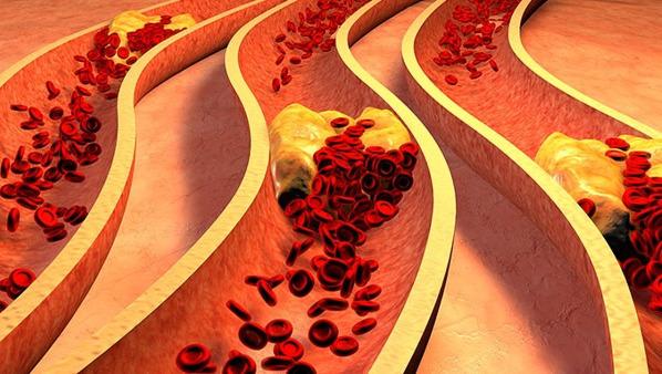 血管瘤危险吗?有这4大危害