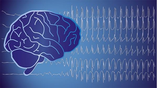 静止性脑积水确实有复发的可能性