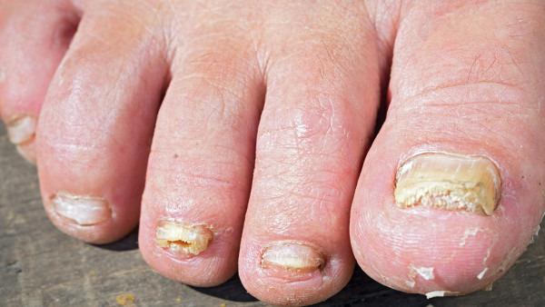 灰指甲容易产生什么危害 容易导致4个后果 早发现早治疗