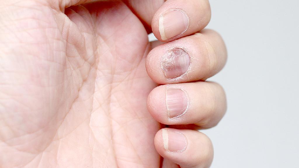 得了灰指甲怎么办 治疗灰指甲的5个有效方法