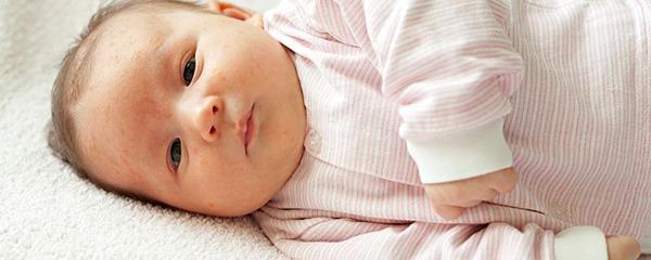 新生儿红屁股怎么治疗 应对新生儿红屁股的4个有效方法