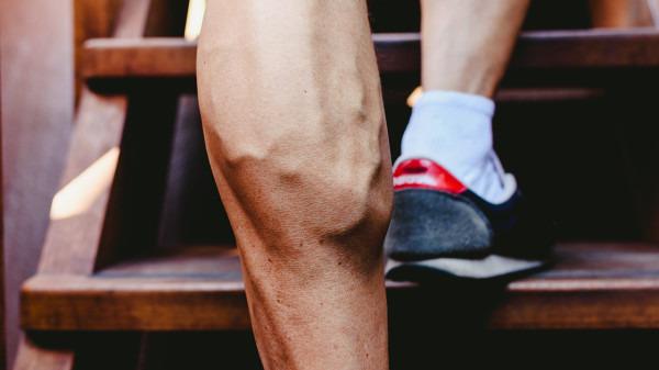静脉曲张袜还有瘦腿功效?静脉曲张袜的副作用是什么