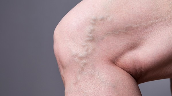 下肢静脉高压会引发什么后果
