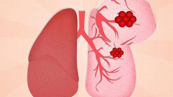 肺癌早期的5大症状  肺癌的4大饮食禁忌