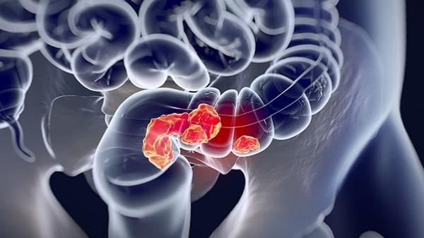 如何预防结肠癌?结肠癌的早期症状有哪些