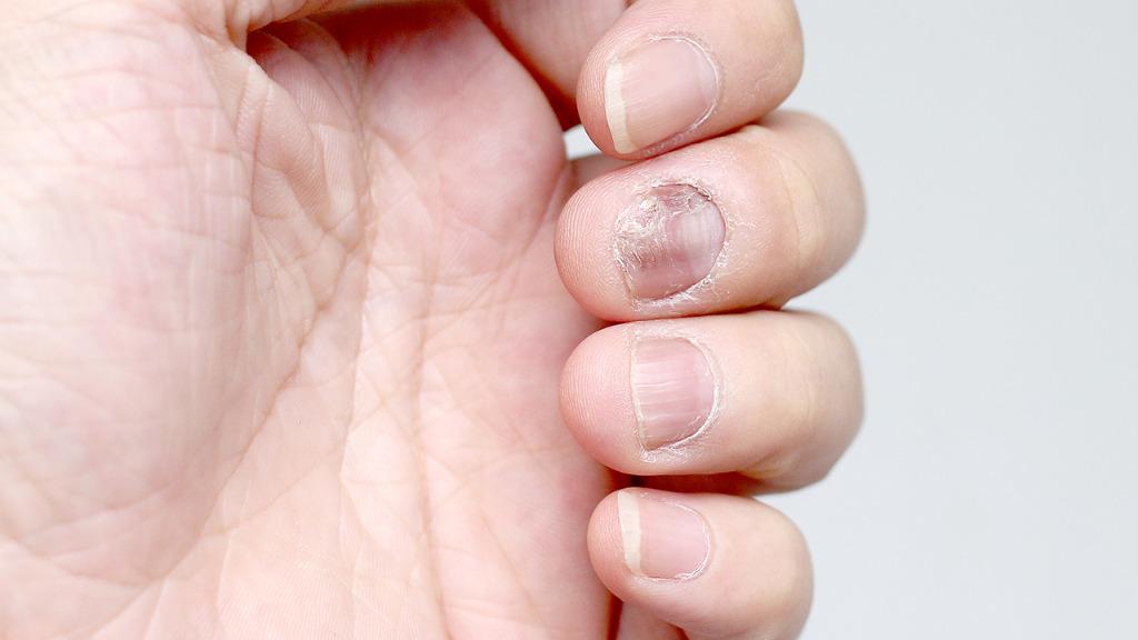 灰指甲有什么症状?怎么治疗灰指甲