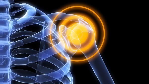 股骨头坏死有什么症状?股骨头坏死的4个表现