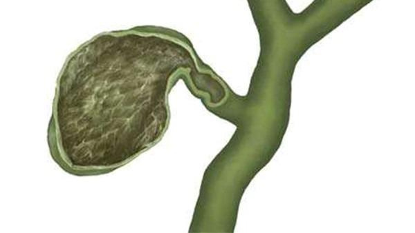 胆囊息肉该怎么办 3类胆囊息肉的正确治疗方法