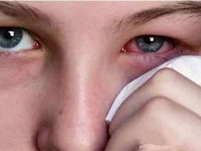 眼球血丝_5,眼睛血丝
