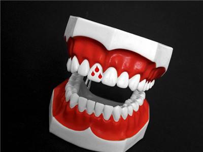 健康科普 生活卫士  3,牙龈萎缩,出血:健康的牙床紧紧包住每一颗牙齿.