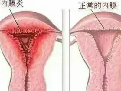 老妇女子宫�_什么是子宫内膜炎