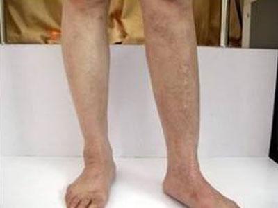 腿部大面积白癜风怎么诊治