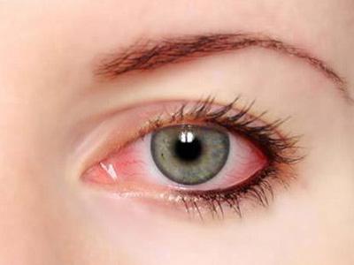 眼球血丝_眼睛红血丝怎么办?