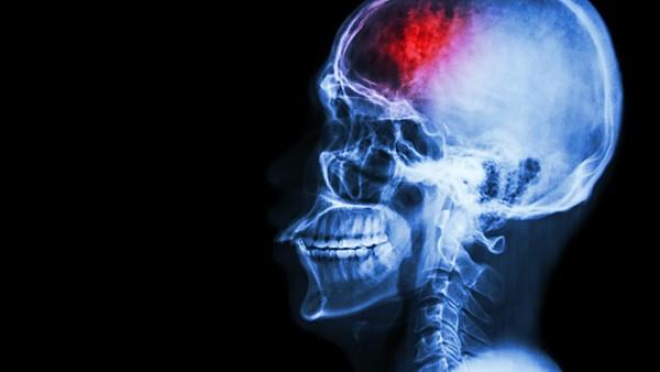 女性癫痫病会遗传吗_癫痫的病因_癫痫病的起因_癫痫病是怎么引起的 - 复禾健康
