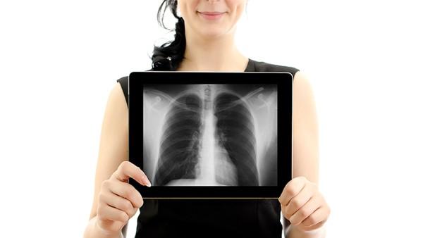 治疗胸膜炎最好的医院推荐哪家