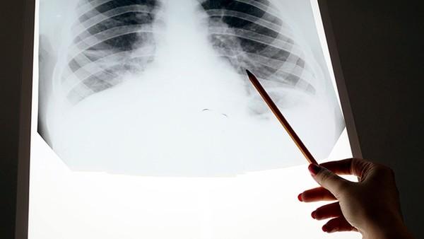 直肠癌的治愈率是多少