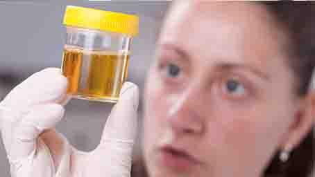 尿毒癥會傳染嗎