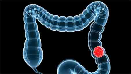 腸梗阻手術后老是拉肚子怎么辦