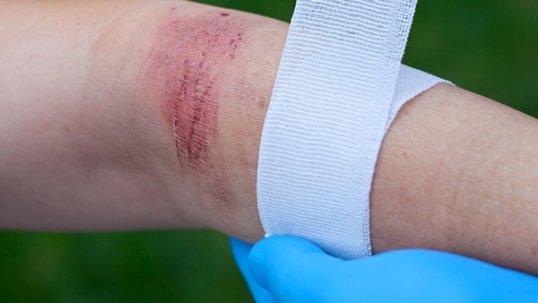 燒傷疤痕該怎么處理