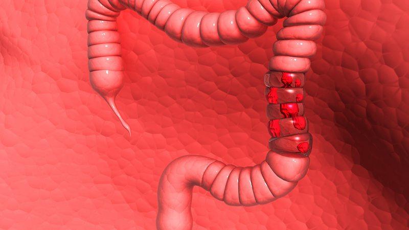 結腸炎會轉化為結腸癌嗎
