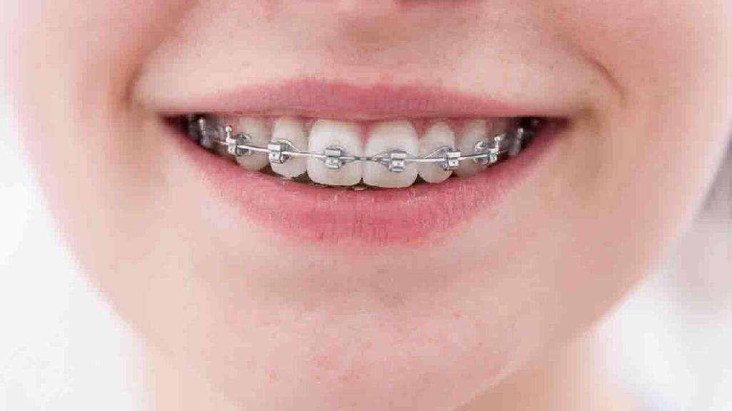 正颌修复让美丽笑容从齿起航