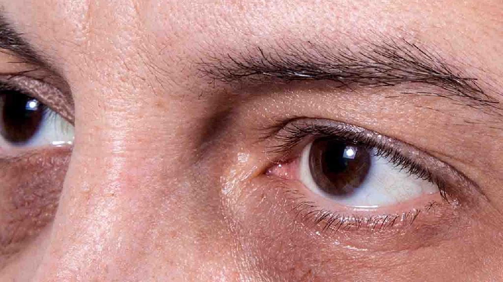 如何才能预防黑眼圈的出现