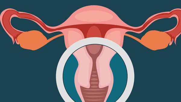 子宫内膜息肉的术后如何护理? 一定要摄取丰富的营养
