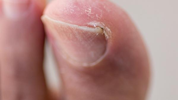 甲沟炎反复不愈危害多?指甲剪成方形可避免得甲沟炎?