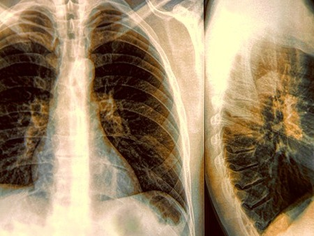 气胸手术后注意事项有什么? 要预防感冒咳嗽?