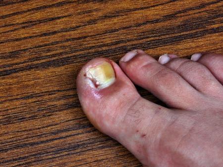 灰指甲怎么金沙app下载治疗?注意结合病情