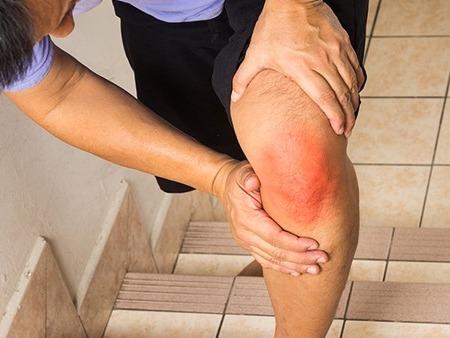 世界骨质疏松日:老年人如何预防骨质疏松症?