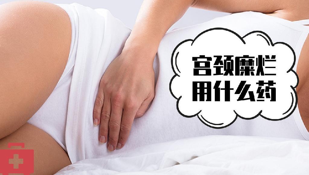 宫颈糜烂用什么药 临床治疗宫颈糜烂常用的几类药物