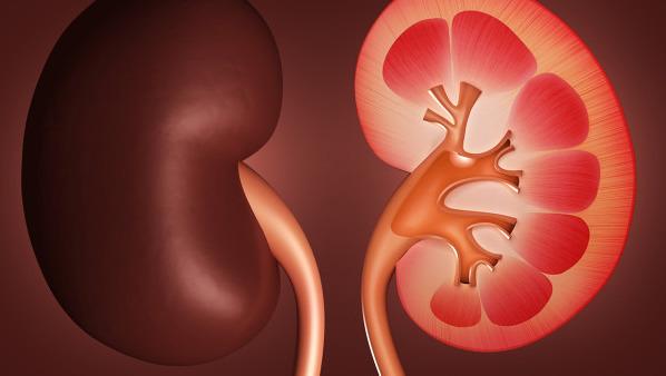 肾结石有生命危险吗,治疗肾结石的2个方法