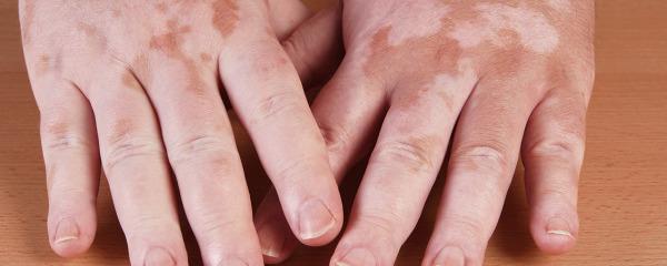 胳膊上有白斑是什么 胳膊上出现白斑可能是5种皮肤病