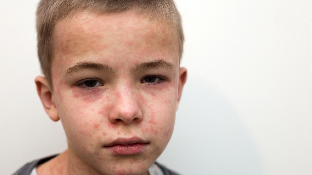 小孩荨麻疹怎么断根,治愈小孩荨麻疹的5个手段