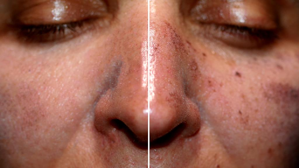 面部色斑的成因和分类有什么?