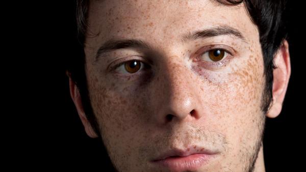 脸上长斑的治疗方法有哪些?