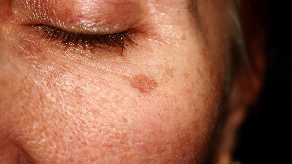 蝴蝶斑最佳治疗方法有哪些?