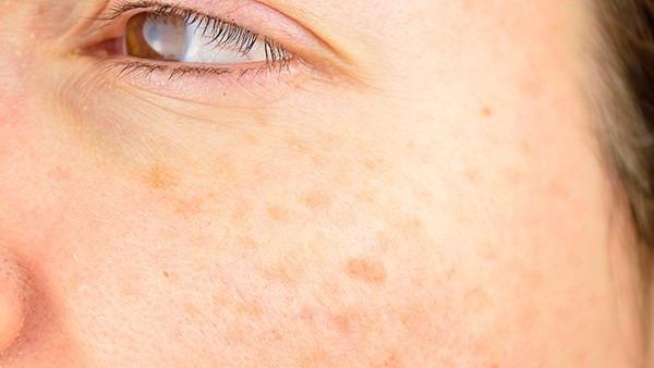 吃中药多久黄褐斑淡化?个体差异都不同