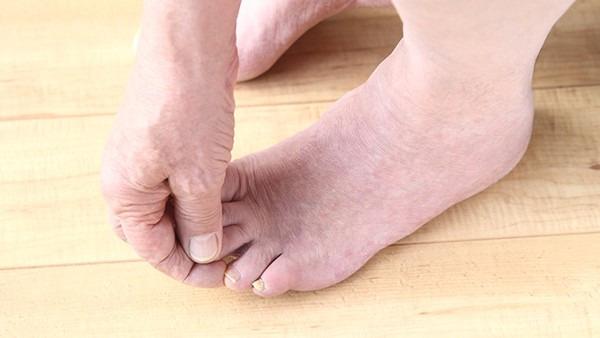 人为什么会有脚气 5种不良情况会引发脚气