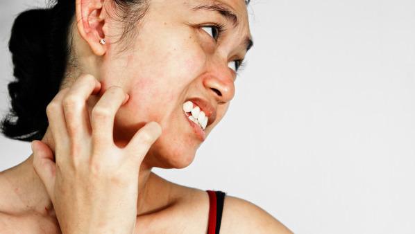 面部过敏的原因是什么 让我们从内因和外因分析