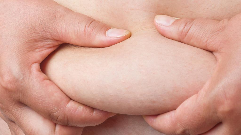 吸脂减肥要注意这些危害 看完你还想吸脂吗?