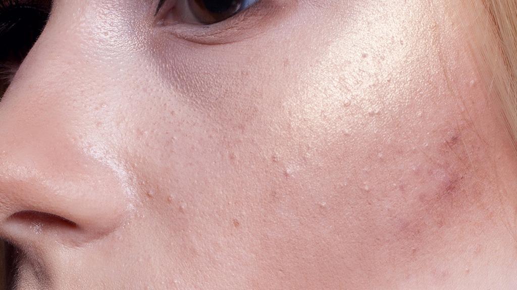 在冬季如何对皮肤进行保健